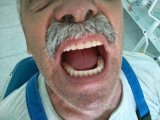 Ολοκληρωμένη ολική οδοντοστοιχία επι εμφυτευμάτων.