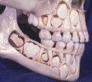 Μικτή οδοντοφυία ( ύπαρξη ταυτόχρονα μόνιμων και παιδικών δοντιών στο στόμα) σε παιδιά ηλικίας 6 με 12 ετών.